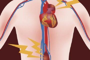 Anévrisme de l'aorte abdominale sous rénale