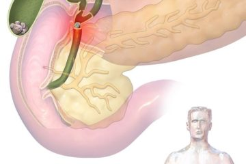 Appendicite : Définition, causes et symptômes