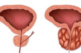 Traitement de l'adénome prostatique