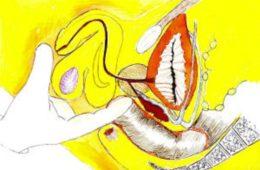 Dépistage et diagnostic de l'adénome prostatique
